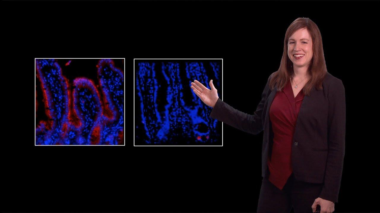 Lora Hooper (UT Southwestern) 2: Mammalian gut microbiota: Maintaining  symbiosis in the intestine