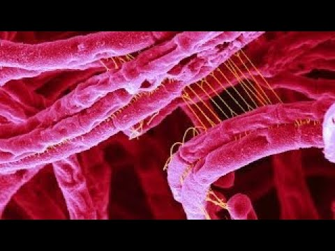 The Best Documentary Ever - What is Anthrax Disease? ()