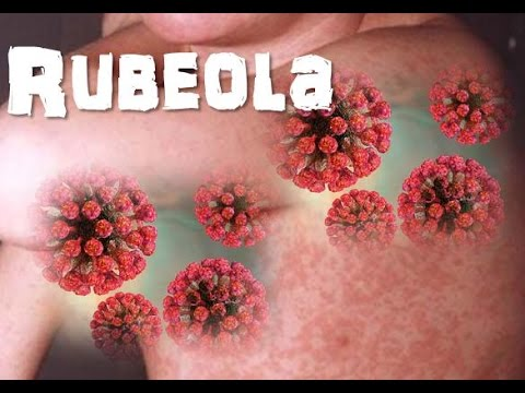 agente causal de la enfermedad rubeola