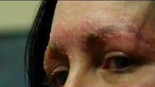 Woman shares dangers of eyebrow microblading