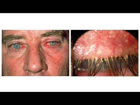 Демодекоз век, глаз, ресниц - причины, симптомы, анализ, лечение
