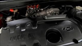Motordan gelen şıkırtı sesi ve bitmeyen sorunlar (accent era 1.4)