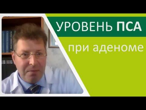 Уровень ПСА при аденоме предстательной железы