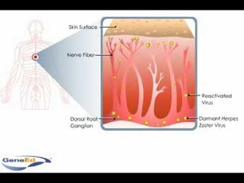 shingles pathophysiology