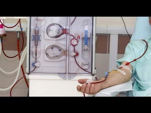 Kidney Dialysis All You Need To Know