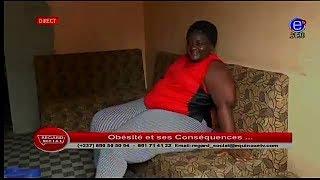 OBESITE ET SES CONSEQUENCES - REGARD SOCIAL - Jeudi 22 Février 2018