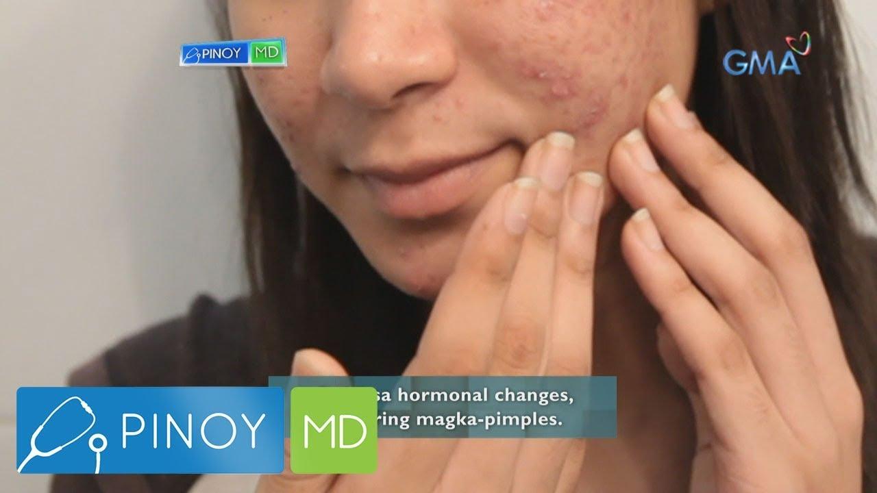 Pinoy MD: Pagbubuntis, may kinalaman ba sa pagkakaroon ng pimples?