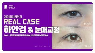 하안검과 눈매교정후기