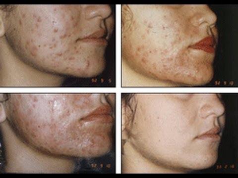 Secreto como desaserte de tus marcas del acne rapido y - Como quitar la carcoma ...