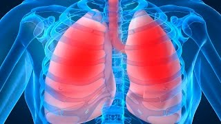 Types|Mesothelioma|Asbestos|Lung|Cancer|Pleural|Peritoneal|Pericardial|Symptoms|Prognosis|Treatment