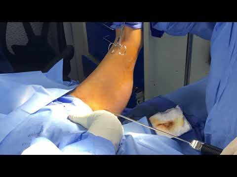 Liposuction and Bodytite of Arm Part 1