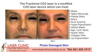 LASER CLINIC  CAPE TOWN   SOUTH AFRICA