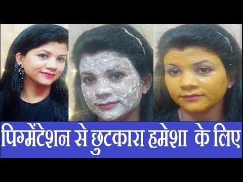 Pigmentation Treatment At Home | Dark spots on face removal | Remove dark spots at home in home