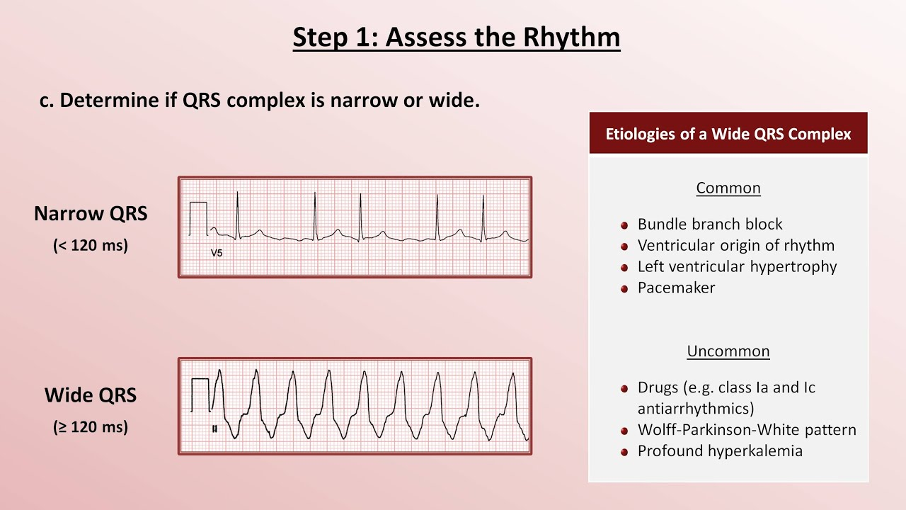 Intro to EKG Interpretation - A Systematic Approach - YouTube