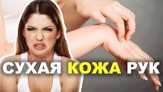 Сухая кожа рук как защитить кожу рук в холодную погоду