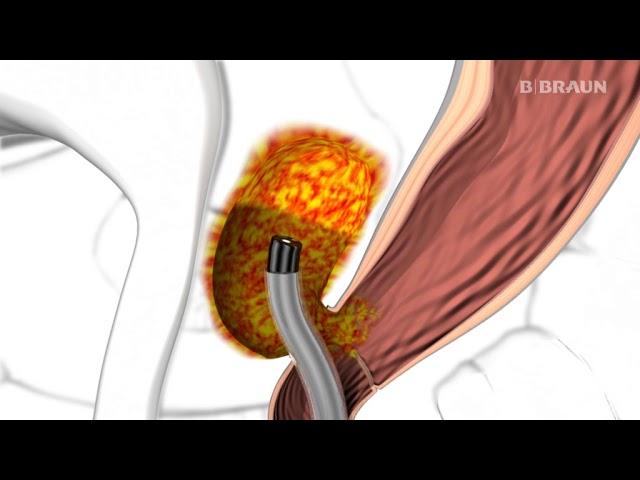 mopszízületi dysplasia kezelés)