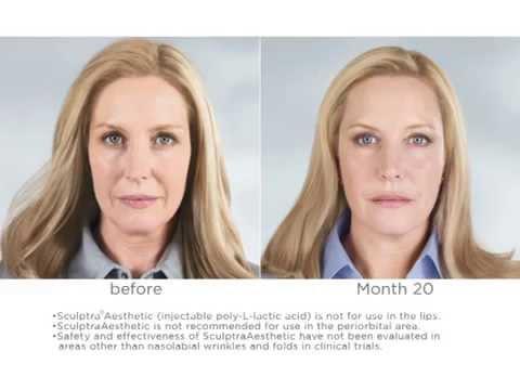 Sculptra - Facial Injectable for Anti Aging Testimonials