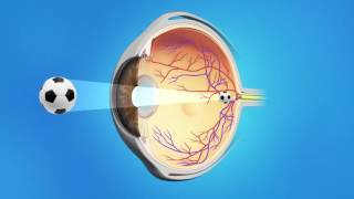 Secondary Cataract (Posterior Capsule Opacity)