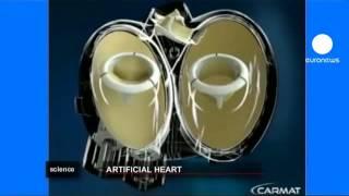 Yapay kalp dönemi basliyor 1