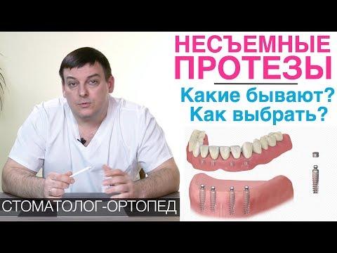 Несъемные зубные протезы: какие бывают и как выбрать несъемный протез для зубов? Зубные мосты и др.