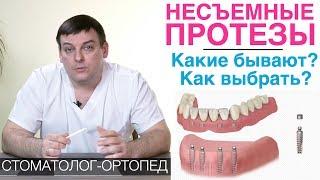 несъемные зубные протезы: какие бывают и как выбрать несъемный протез для зубов? Зубные мосты и др