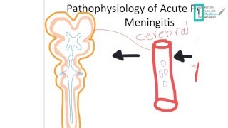 Meningitis Part 1
