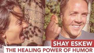 Shay Eskew uses the power of humor to overcome severe childhood burns