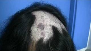 Hair Transplant for Burn Victim