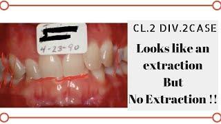 Class 2 Div.2 Non Extraction Case