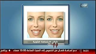 #القاهرة_والناس | علاج التسوس وتجميل اللثة مع دكتور كريم إبراهيم فى #الدكتور