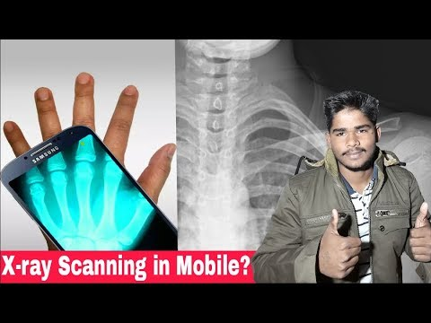 [Hindi] Best Real X-rays Body Scanner App For Android   How To Download X-rays App   Cloth Removing