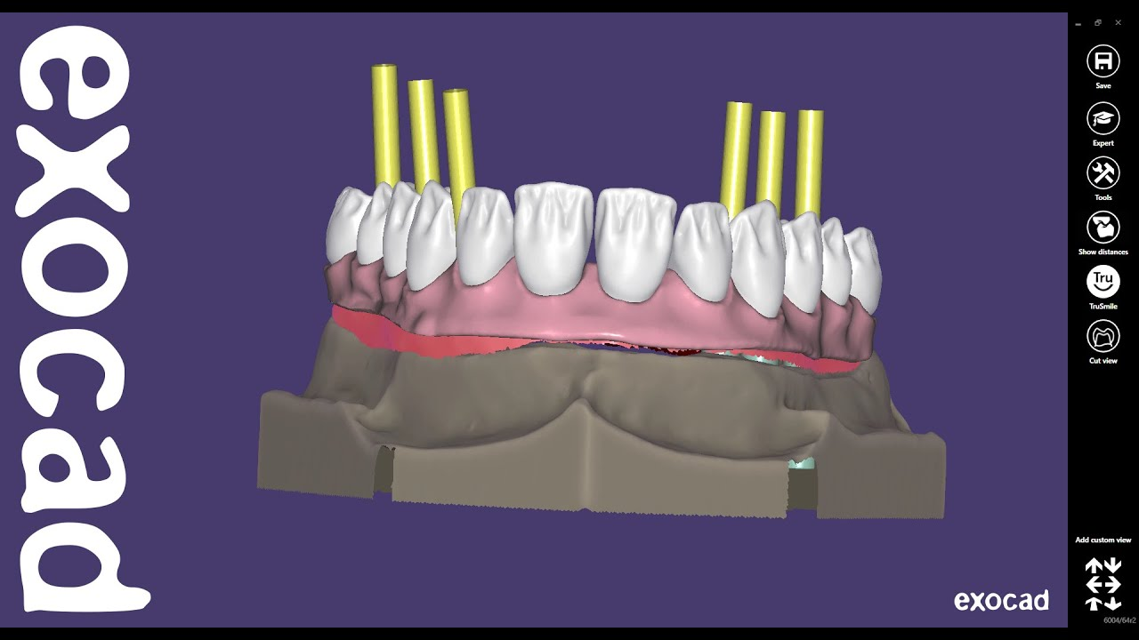 exocad Video Tutorial (advanced): Virtual Gingiva and