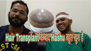Live Hair Transplant Surgery Talk with Patient - Hair Video