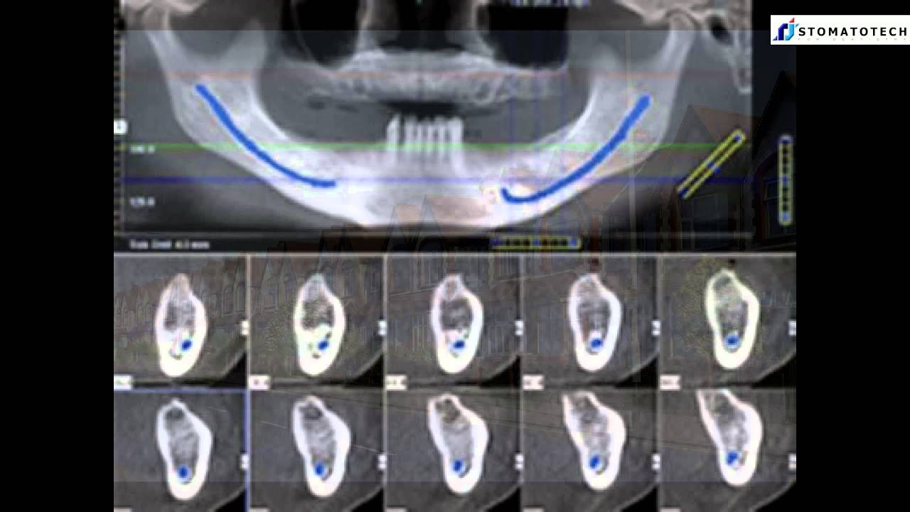 use of cbct in orthodontics a review With the introduction of three-dimensional imaging in the field of dentistry, cone beam computed tomography (cbct) has generated great interest in various applications in orthodontics as orthodontic treatment revolves around correcting a malocclusion in three dimensions, the earlier use of two.
