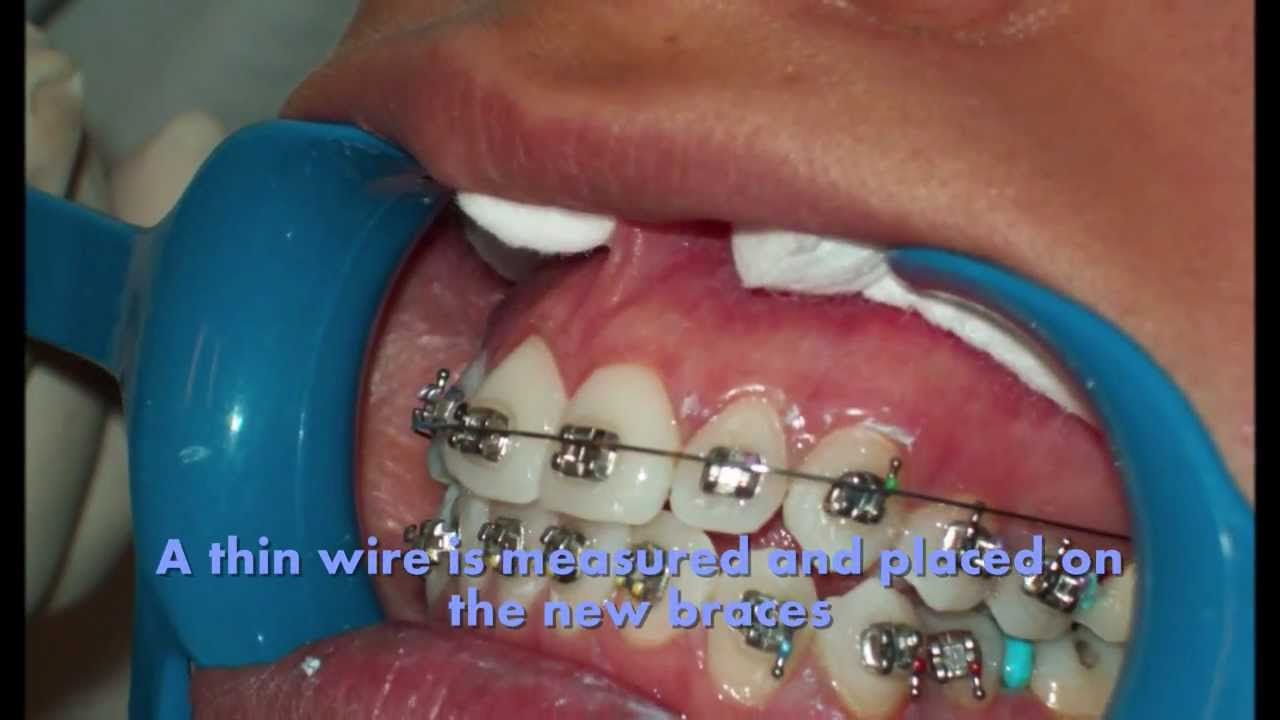 How to insert teeth 34