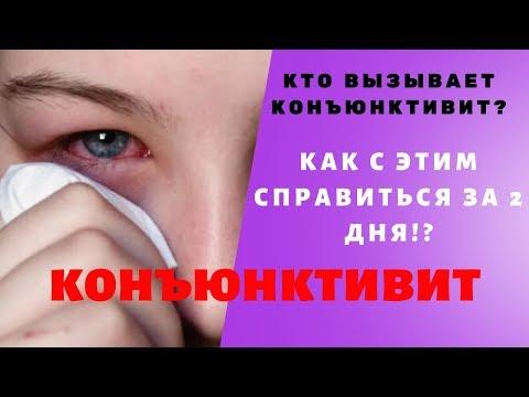 Как быстро и легко избавиться от конъюнктивита✳️ Хронический конъюнктивит✳️ Красные глаза