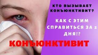 как быстро и легко избавиться от конъюнктивита Хронический конъюнктивит Красные глаза