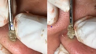 How To Remove Blackheads On Nose ✦ Dr Laelia ✦