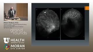 Dapatkan Informasi Kesehatan Lainnya di : www.surabayaeyeclinic.co.id . Surabaya Eye Clinic Jl. Raya.