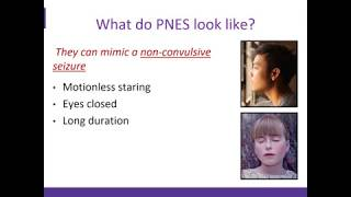 An Overview of Psychogenic Non Epileptic Seizures (PNES)