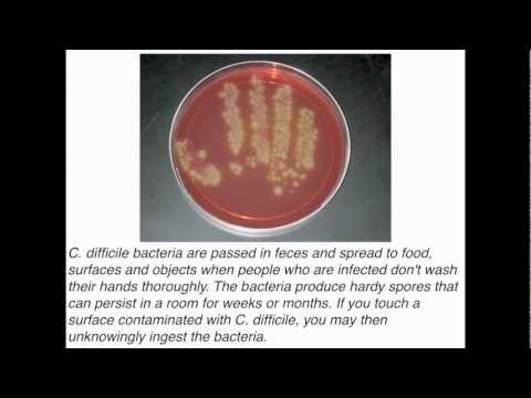 C Difficile Infection