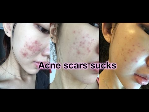 natural-acne-scars-remedy-(essential-oils)