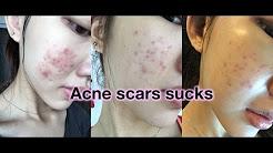 hqdefault - Essential Oil Acne Scar Remedy