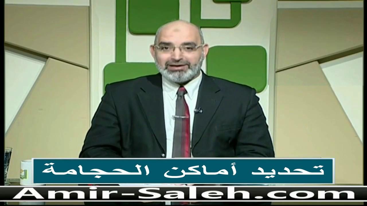 تحديد أماكن الحجامة | الدكتور أمير صالح | الطب الآمن
