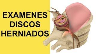 Ciatica vertebras lumbares