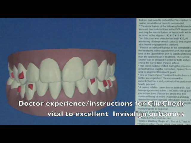 Invisalign ClinCheck Explanation