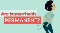 Are Hemorrhoids Permanent? 6 Things You Should Know