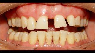Orthodontic Treatment of Severe Median Diastema, Ekhlas 37yrs