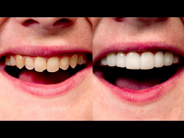 #1 Way To Makeover Your Smile Online! No Dentist! 100% Digital Design