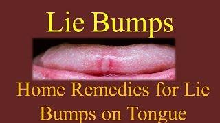 lie bumps